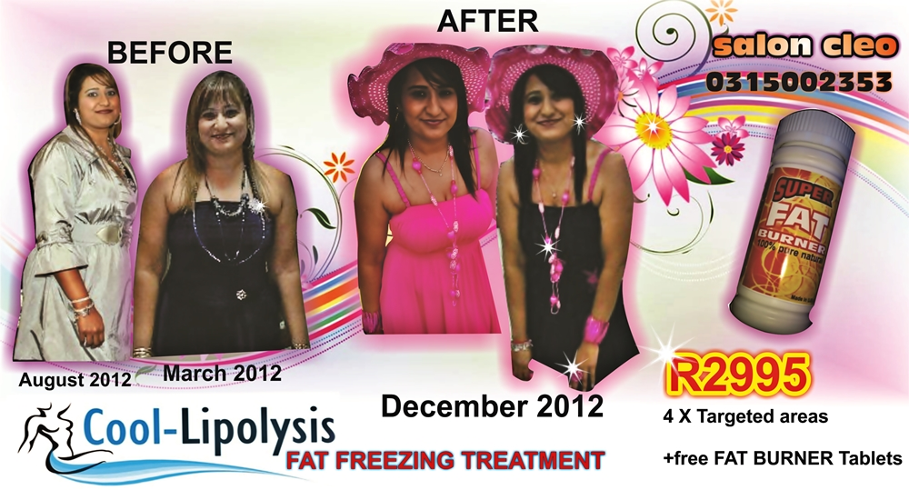 COOL LIPOLYSIS FAT FREEZING TREATMENT WEIGHT LOSS AT SALON CLEO 0315002353