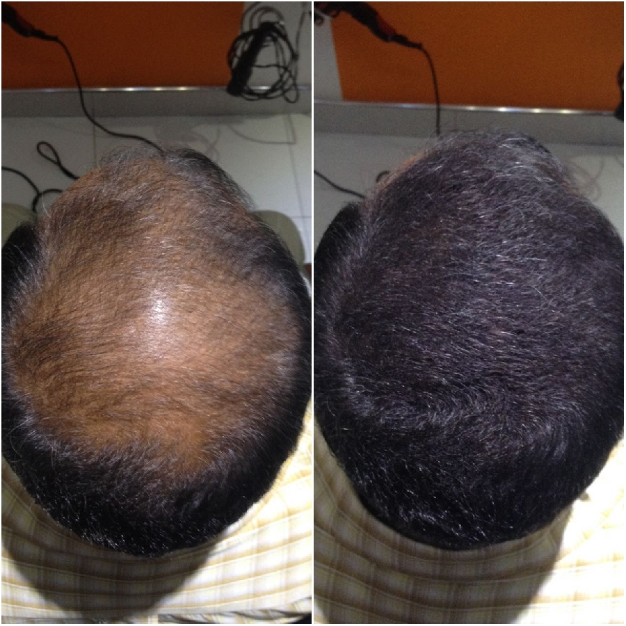 hair-bond-fibre